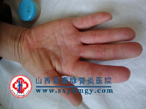 股动脉注射疗法治疗雷诺氏病