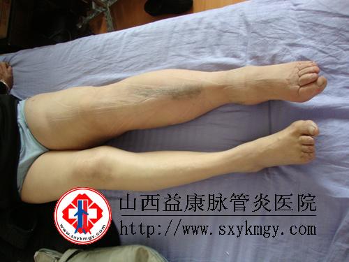 中西医结合配合压力治疗仪治疗淋巴水肿