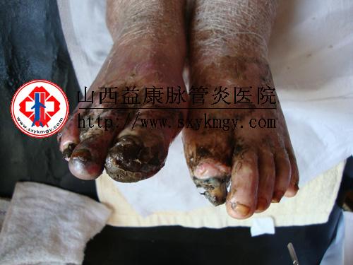 下肢闭塞性脉管炎图片