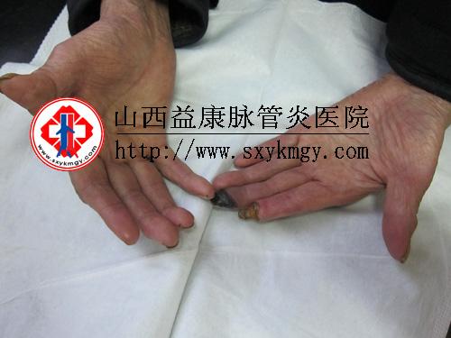 手指脉管炎的症状及图片