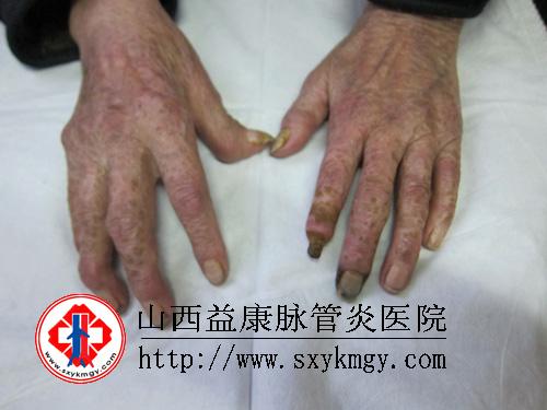 脉管炎的初期症状图片