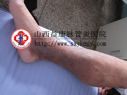 单侧腿肿小心深静脉血栓
