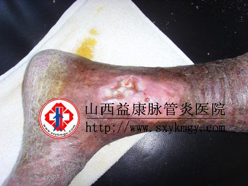 下肢深静脉血栓的图片