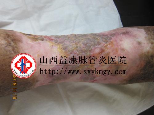 中医治疗周围血管病选择山西益康脉管炎医院