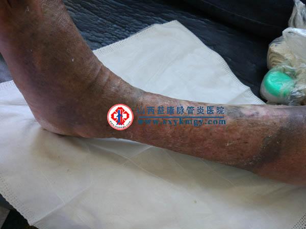 2个月治愈9年的下肢慢性溃疡(老烂腿)