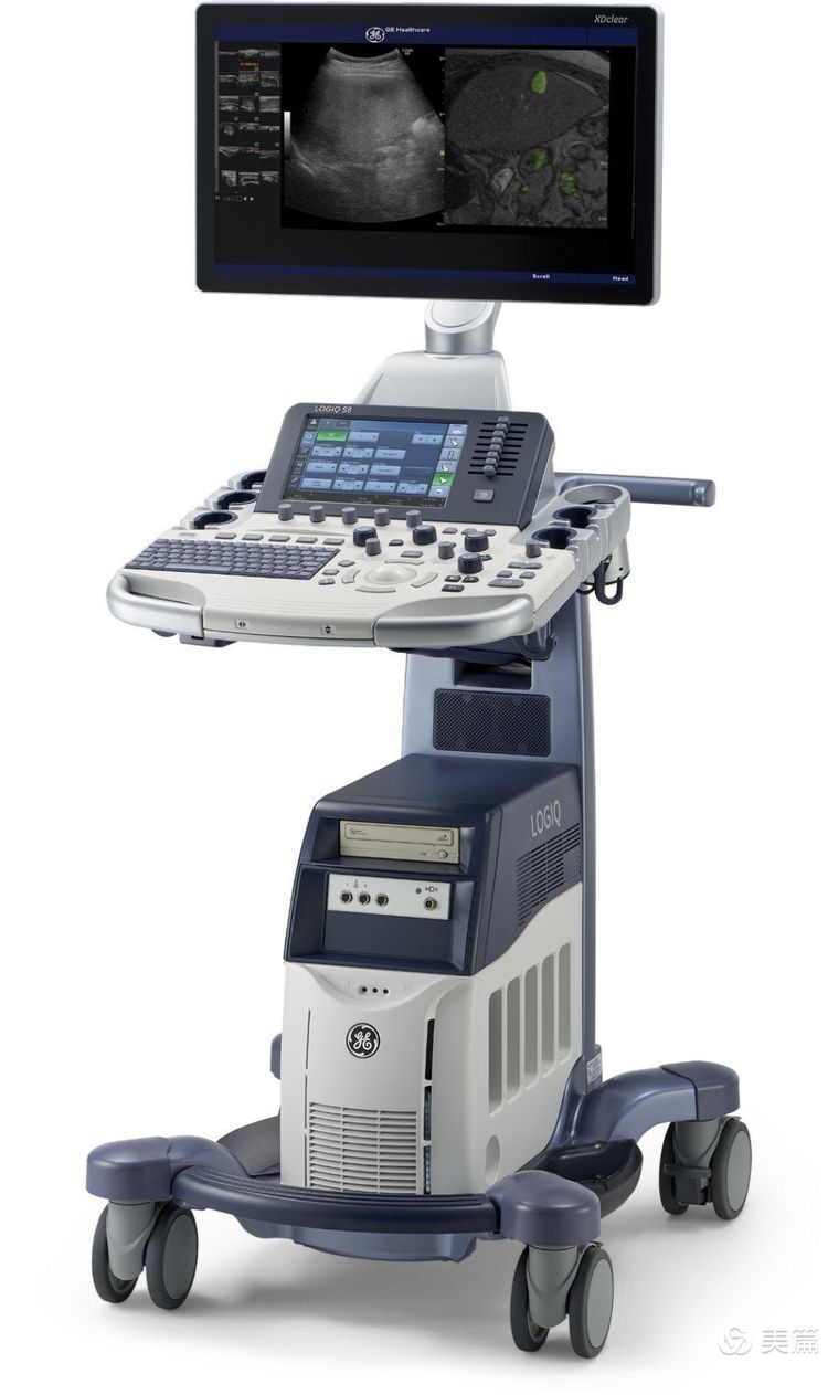 GE LOGIQ S8超声检查仪