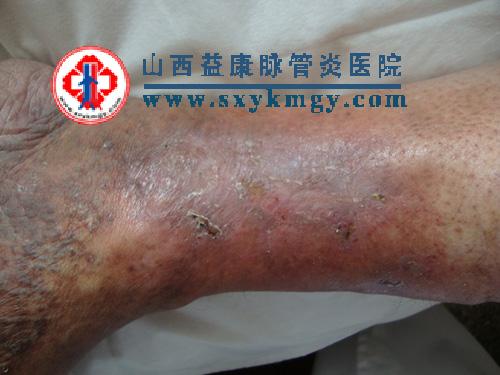 山西忻州李某某双下肢静脉曲张综合征康复病例