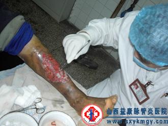 滥用激素治疗变应性血管炎造成的严重后果