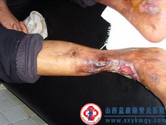 山西益康脉管炎医院专业治疗变应性血管炎