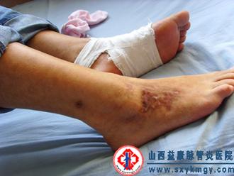 中西医结合、非激素疗法治疗变应性血管炎