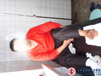 脉管炎图片