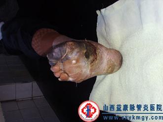 下肢脉管炎
