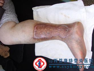 中西医结合治疗周围血管疾病