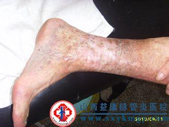 老烂腿是皮肤病吗