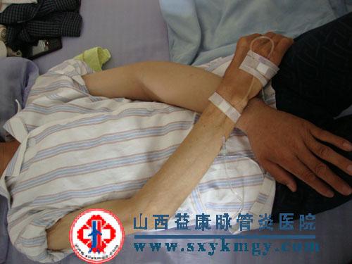 上肢深静脉血栓形成的症状图片