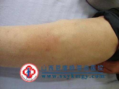 下肢浅静脉炎的症状图片