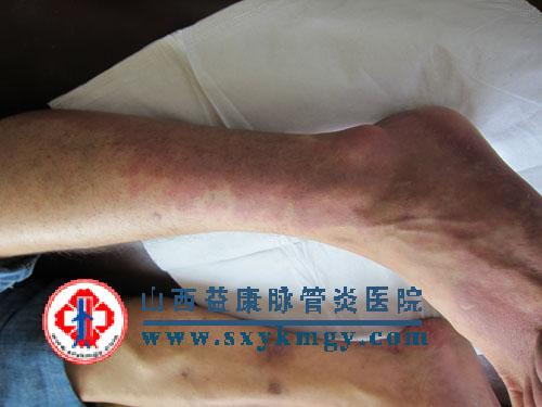 变应性血管炎的临床症状