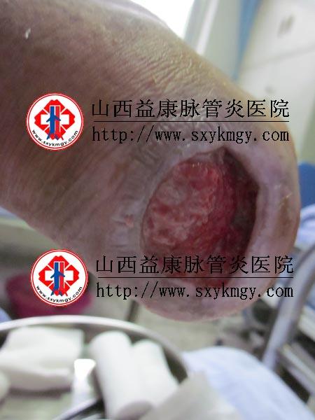 山西阳泉郭某某下肢动脉栓塞治疗病例