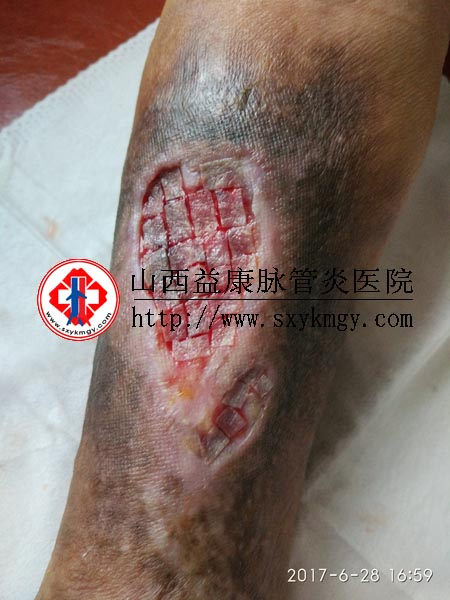山西崔某某30余年的静脉曲张并发溃疡(老烂腿)的治疗病例