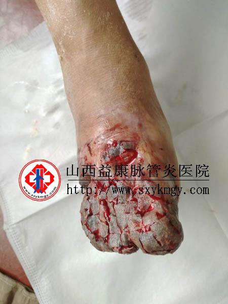 山西临汾张某下肢动脉硬化闭塞症左足发黑坏死的治疗病例