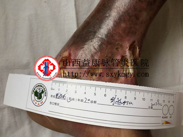 山西原平贾某某双下肢静脉曲张综合征的治疗病例