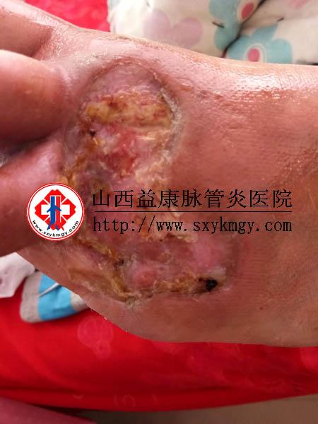 内蒙古葛某某脉管炎伤口溃疡的治疗病例