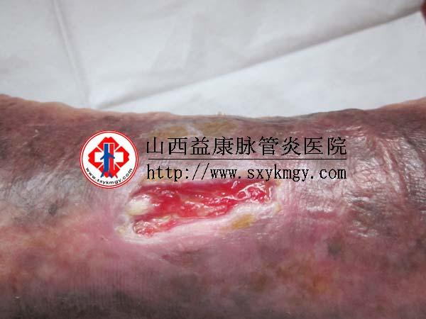 山西太原李某某下肢静脉曲张溃疡的治疗病例