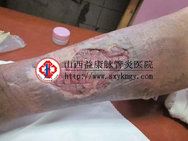 山西临汾杨某某下肢静脉曲张溃疡的治疗病例