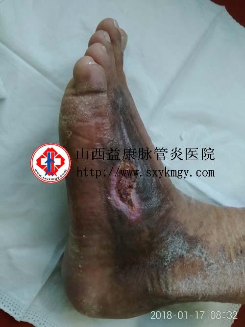 山西吕梁郑某某双下肢深静脉血栓形成合并溃疡的治疗病例