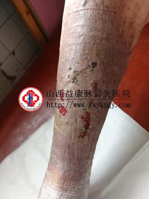 山西吕梁李某某下肢静脉曲张合并溃疡的治疗病例