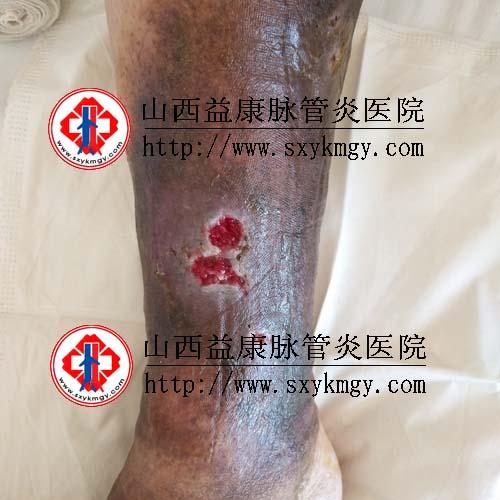 山西吕梁张某某下肢静脉曲张溃疡的治疗病例