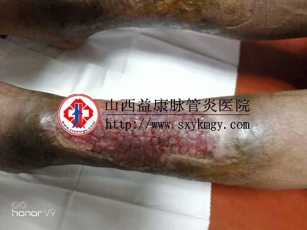 山西清徐贾某某深静脉血栓形成合并溃疡的治疗病例