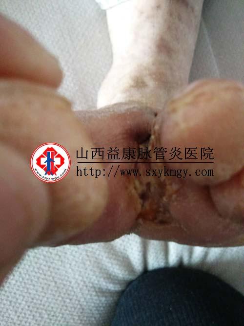 山西临汾李某某糖尿病足溃疡的治疗病例